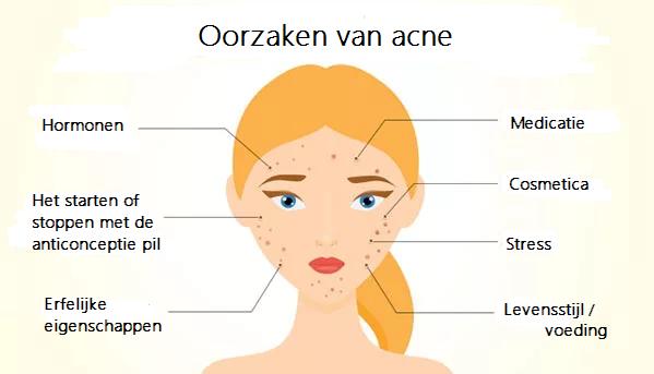 Afbeeldingsresultaat voor feiten acne